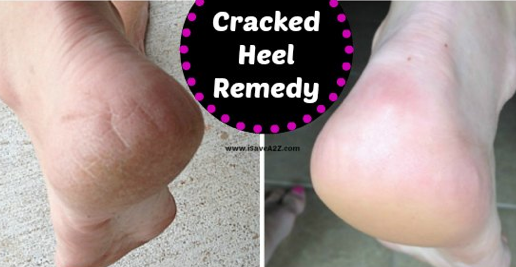 cracked heel home remedy